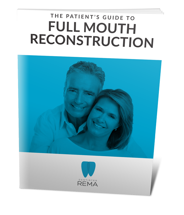 full mouth construction patient guide